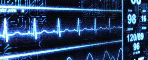 Life saving early and immediate aspirin: too little too late
